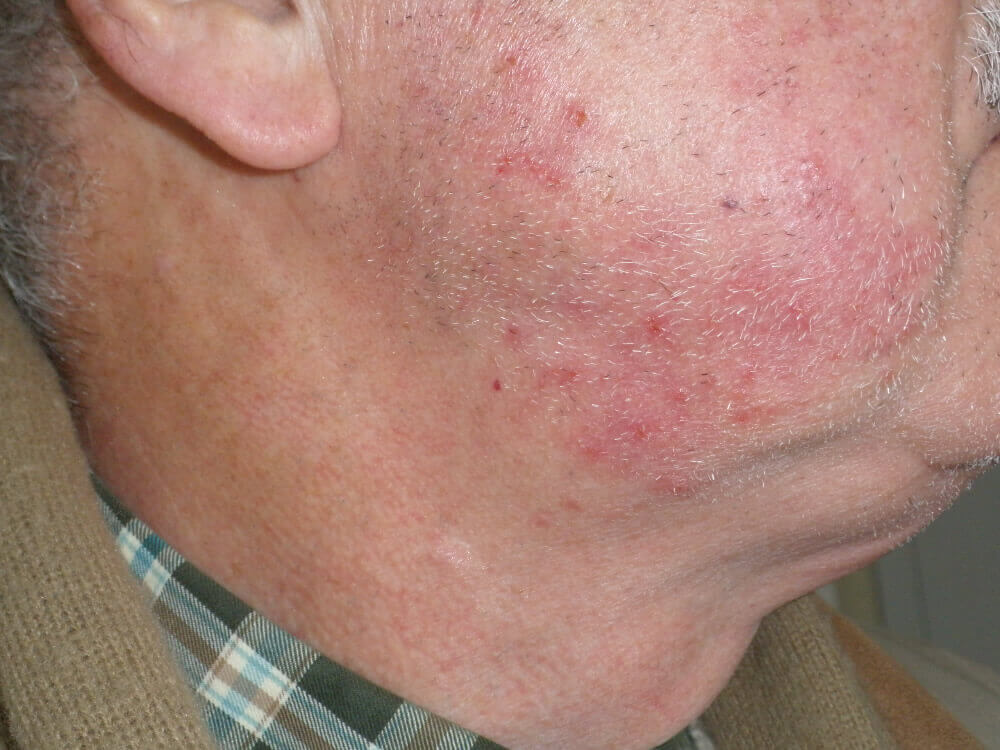 diagnostico rosacea