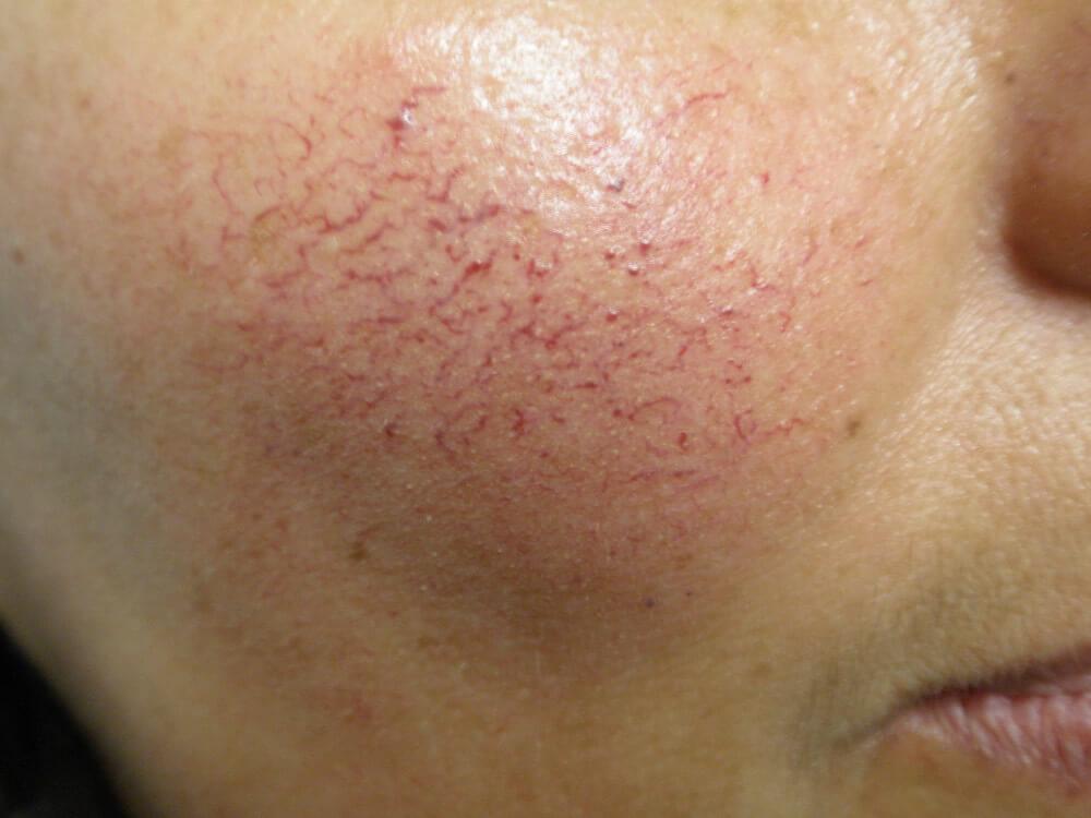 Salvado mim de um acne
